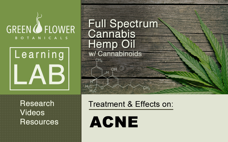 Full-Spectrum-Cannabis-Hemp-Oil-CBD-Acne
